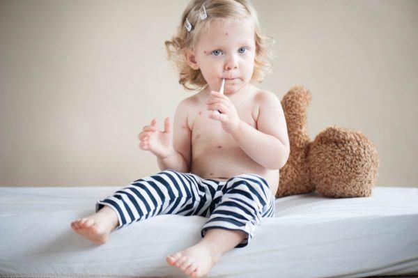 Tratamiento del sarampion buena alimentacion