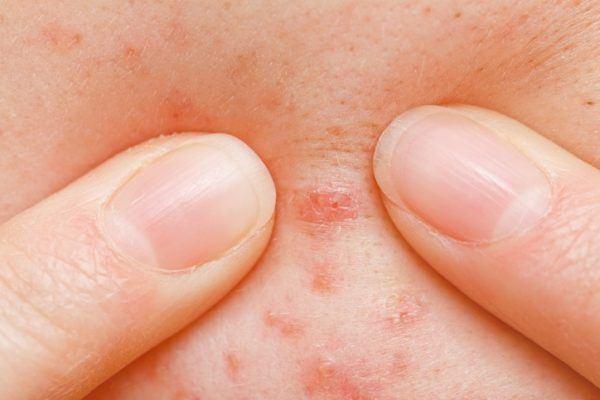Sintomas del sarampion exantema maculopapular