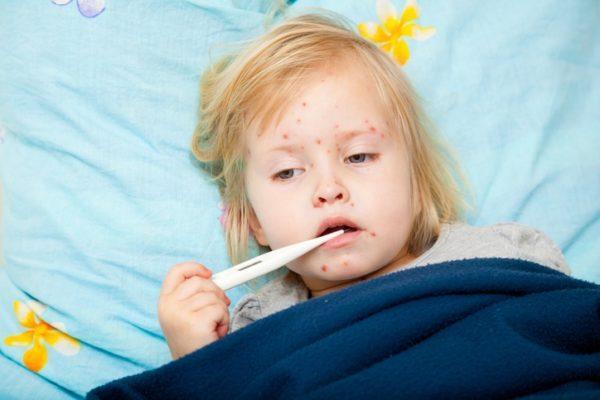 Sintomas del sarampion fiebre alta