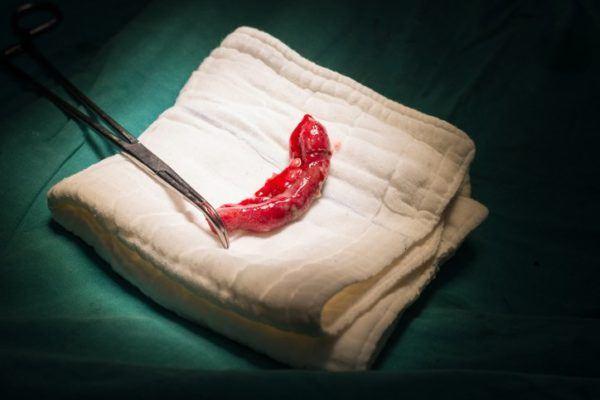 Como se produce una apendicitis obstruccion