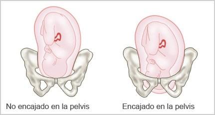 dolor-bajo-vientre-embarazo-dolor-hueso-pelvico