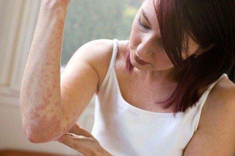 dermatitis atopica embarazo