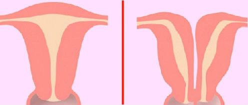 el-utero-bicorne