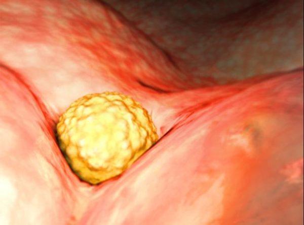 progesterona-embarazo-ovulo-endometrio