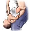 Atragantamiento niños |qué hacer