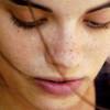 Cloasma y otros cambios de pigmentación en la piel de la embarazada