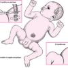 Cordon umbilical bebé recien nacido