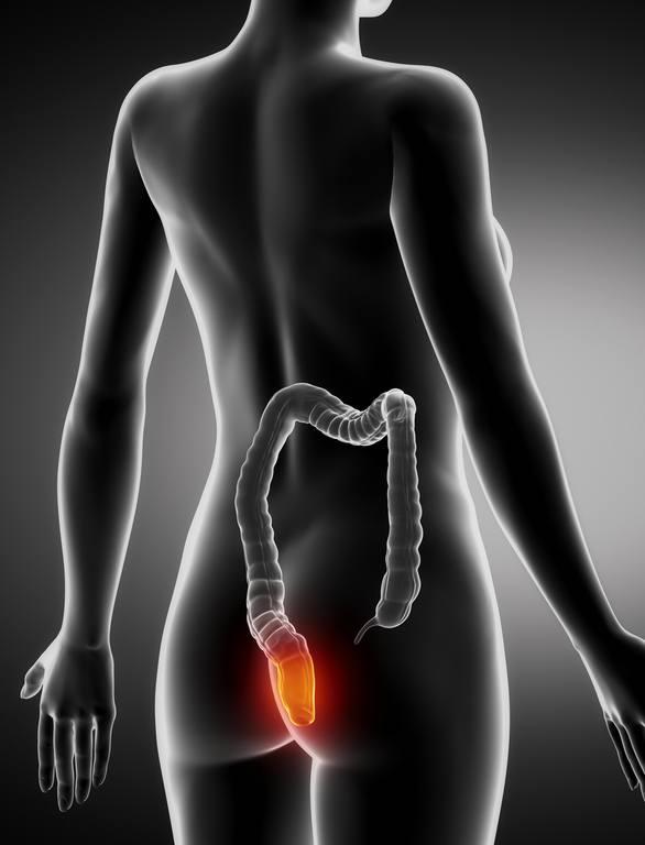 Por que salen las hemorroides durante el embarazo presion en el recto