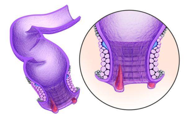 Que son las hemorroides varices o inflamaciones de las venas