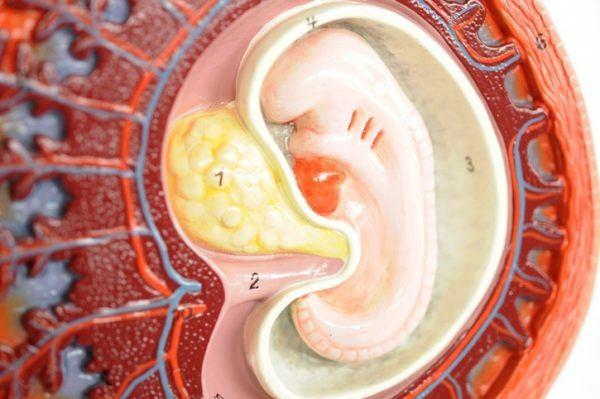 Prevención de la placenta previa