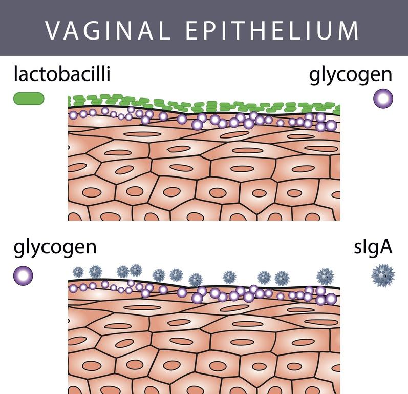 Flujo vaginal con mal olor epitelio de la vagina o capa mucosa