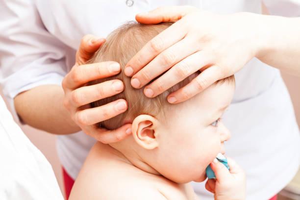 Fontanela del bebe hundida