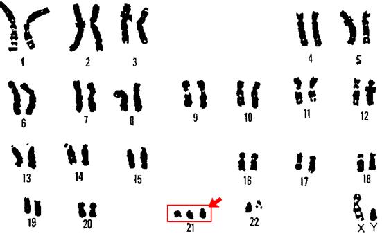 Trisomia 21-Síndrome de Down
