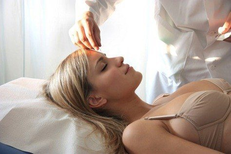 Acupuncture-Fertility-Treatment