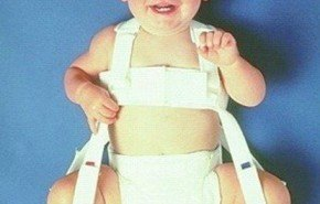 Revision bebe | Displasia de cadera