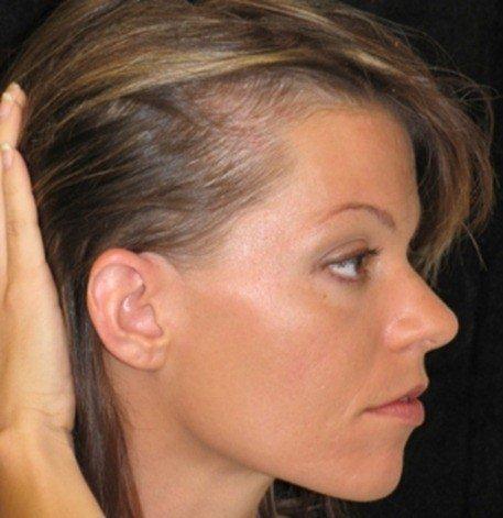 Caen los cabellos después de la estimulación