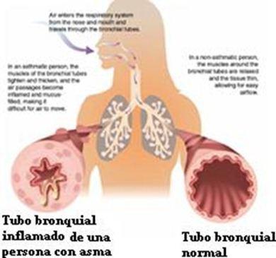 asma1