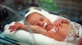 Autismo y parto Prematuro