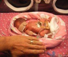 Bebés prematuros | importante la revisión ocular