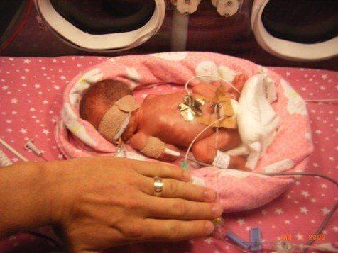 bebes prematuros , revisión ocular