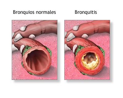 bronquitis-en-niños-sintomas-y-tratamiento-bronquios