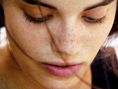 cambios-de-pigmentacion-en-la-piel-de-la-embarazada