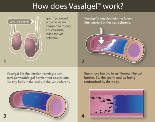 como-funciona-vasalgel