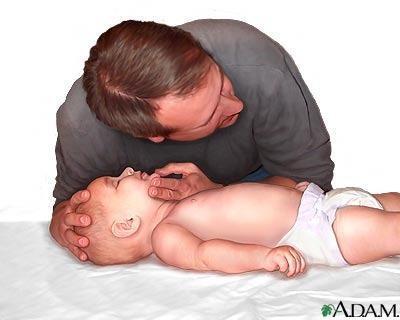 convulsiones-bebes