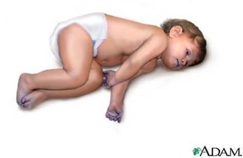 salud del bebe la cioanosis