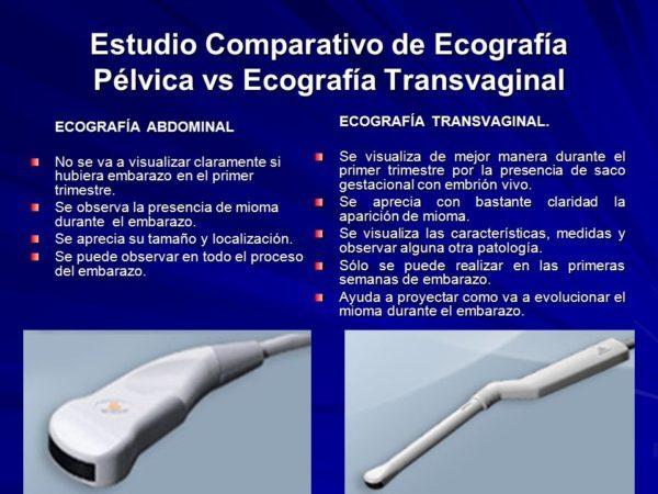 ecografia-transvaginal-diferencias