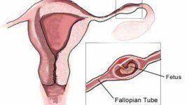 Embarazo ectopico | investigación diagnostico precoz