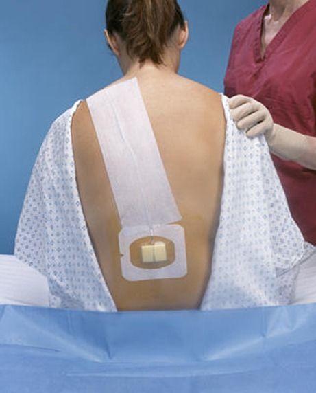 Contraindicaciones de la anestesia epidural
