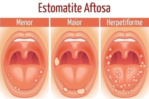 estomatitis-bebe-tipos-diferentes-de-estomatite-aftosa