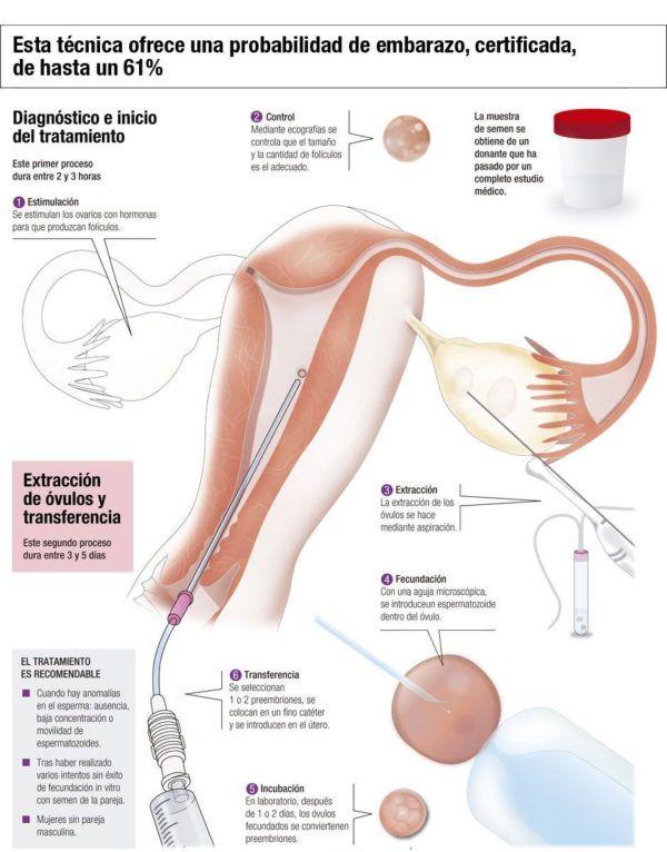fecundacion-in-vitro-tipos-ovulos-propios-semen-donante