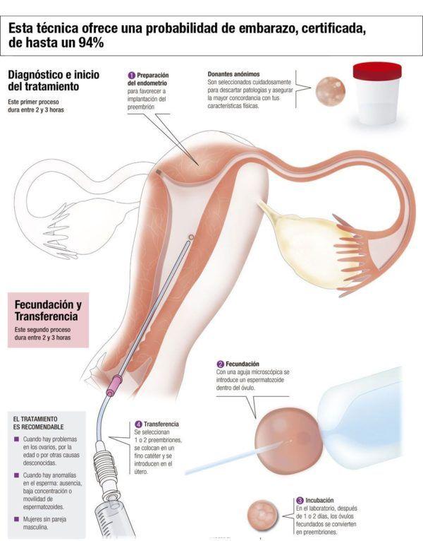 fecundacion-in-vitro-tipos-ovulos-y-semen-de-donante