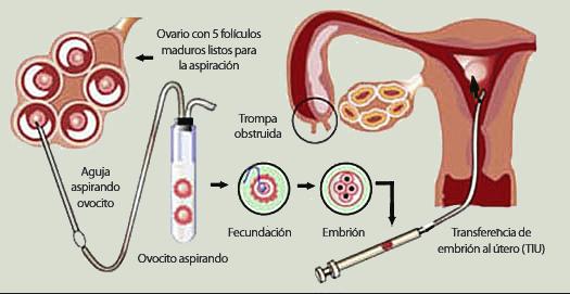 gestacion-subrogada-paso-a-paso-fecundacion