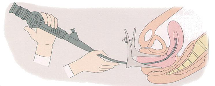 Histeroscopia: qué es, cuándo se hace y tipos - Embarazo10.com