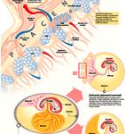 Que es; Placenta previa