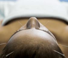 Sindrome del ovario poliquistico, encuentra alivio en la acupuntura