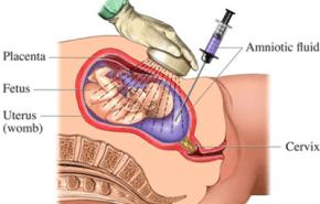 El test de la amniocentesis, una prueba durante el embarazo