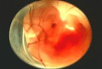 Todo sobre las etapas de gestación en el embarazo