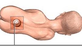 Espina Bifida | La cirugia fetal puede reducir sus consecuencias