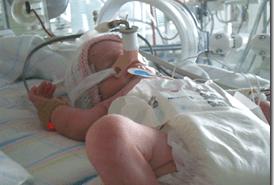 Bebes prematuros con problemas neurologicos