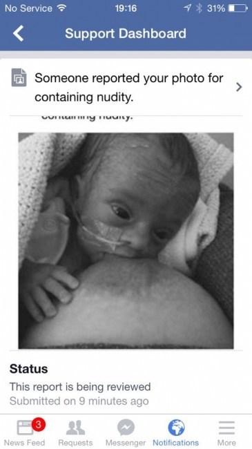 las-conmovedoras-fotos-de-un-bebe-prematuro-que-provocaron-una-protesta-publica-foto-que-fue-borrada