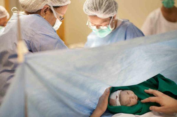 los-partos-por-cesarea-planeados
