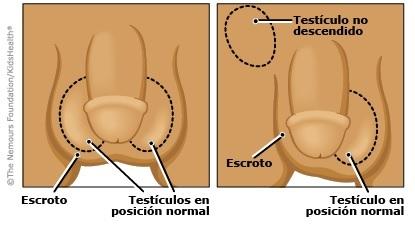 paracetamol-embarazo-testiculo-sin-descender