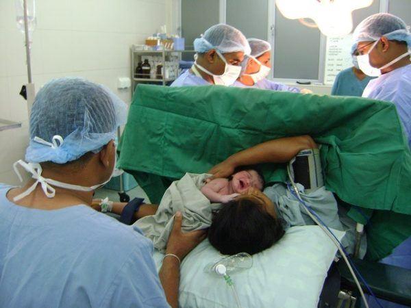 parto cesarea