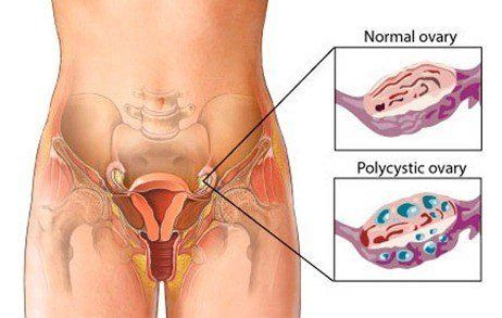Causas de infertilidad en la mujer