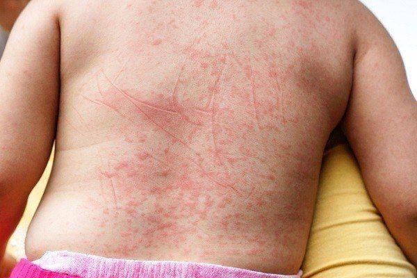 Prevenir sudamina miliaria espalda
