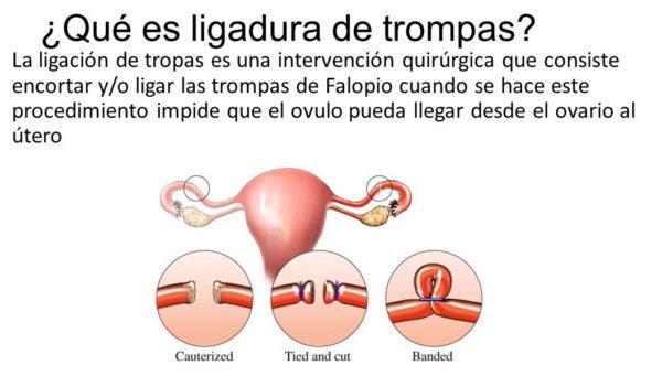 vasectomia-reversible-ligadura-de-trompas